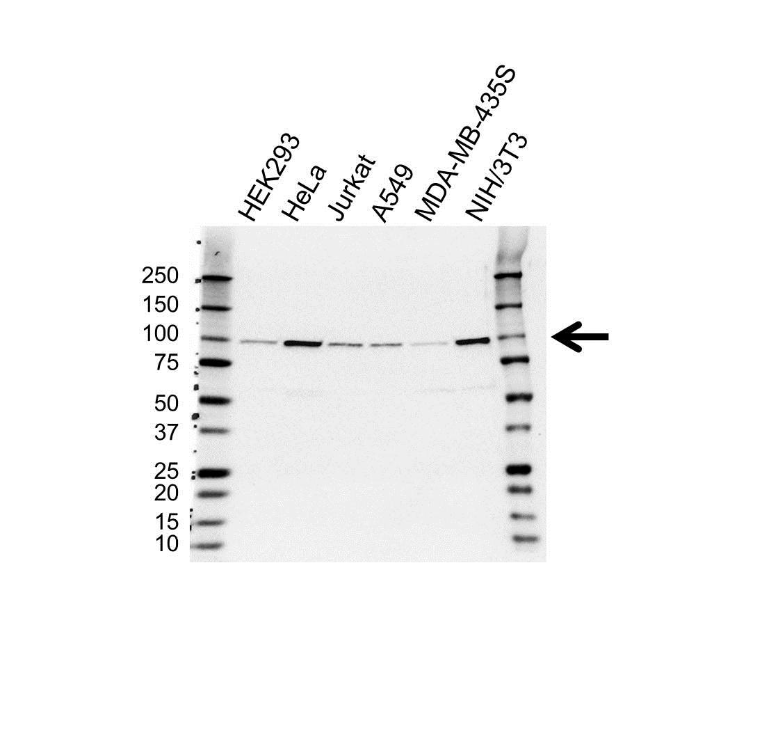 Anti FER Antibody (PrecisionAb™ Monoclonal Antibody) gallery image 1