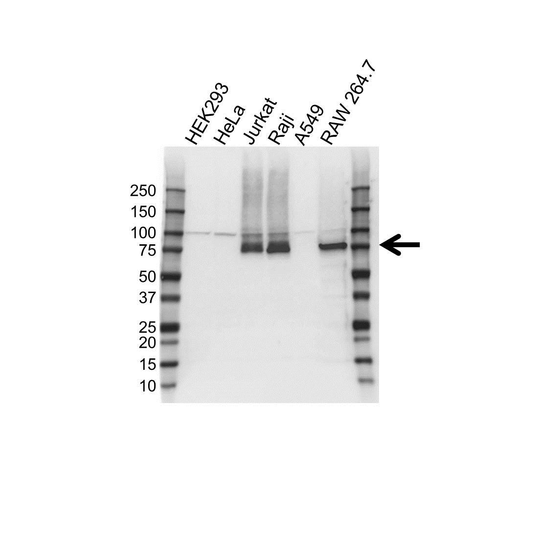 Anti FERMT3 Antibody, clone OTI2G2 (PrecisionAb Monoclonal Antibody) gallery image 1