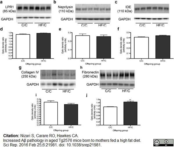 Anti Human Fibronectin (Matrix) Antibody, clone EP5 thumbnail image 1