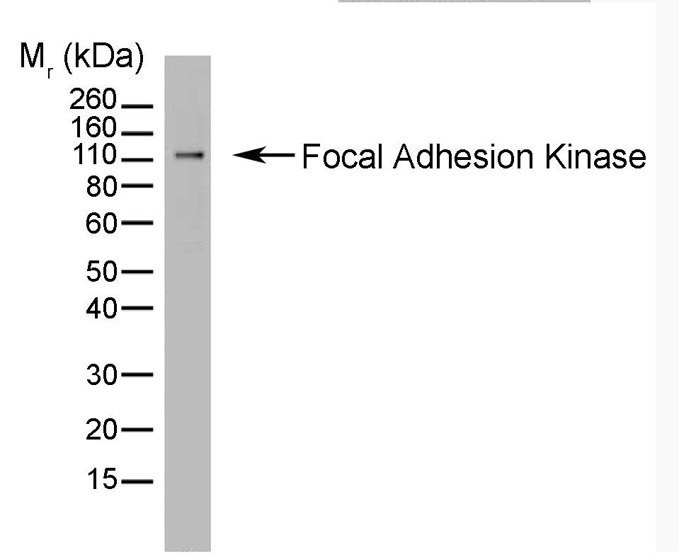 Anti Focal Adhesion Kinase Antibody, clone AbD05479 gallery image 1