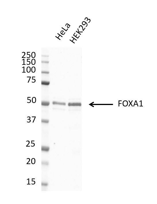 Anti FOXA1 Antibody, clone FOXA1/1512 (PrecisionAb Monoclonal Antibody) thumbnail image 4