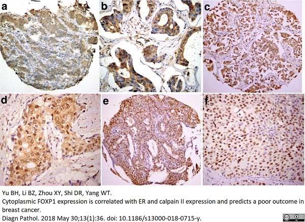 Anti FOXP1 Antibody, clone JC12 thumbnail image 3