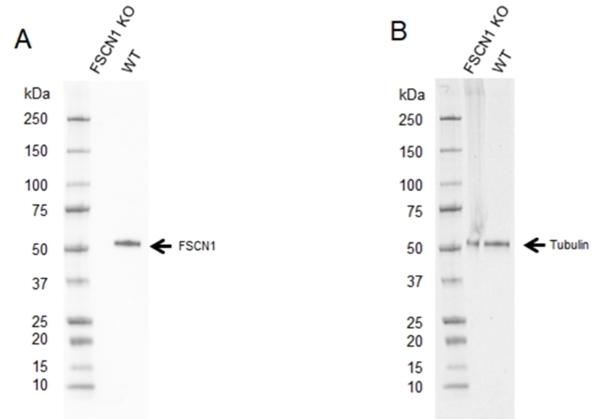 Anti FSCN1 Antibody, clone CPTC29 (PrecisionAb Monoclonal Antibody) thumbnail image 2