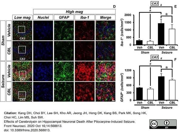 Anti GFAP Antibody, clone RM246 thumbnail image 4