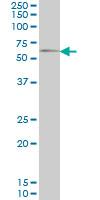 Anti Human GGT1 Antibody, clone 1F9 thumbnail image 1