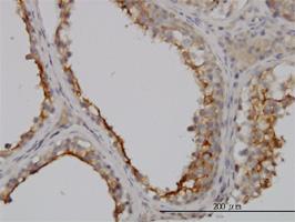 Anti Human GGT1 Antibody, clone 1F9 thumbnail image 2