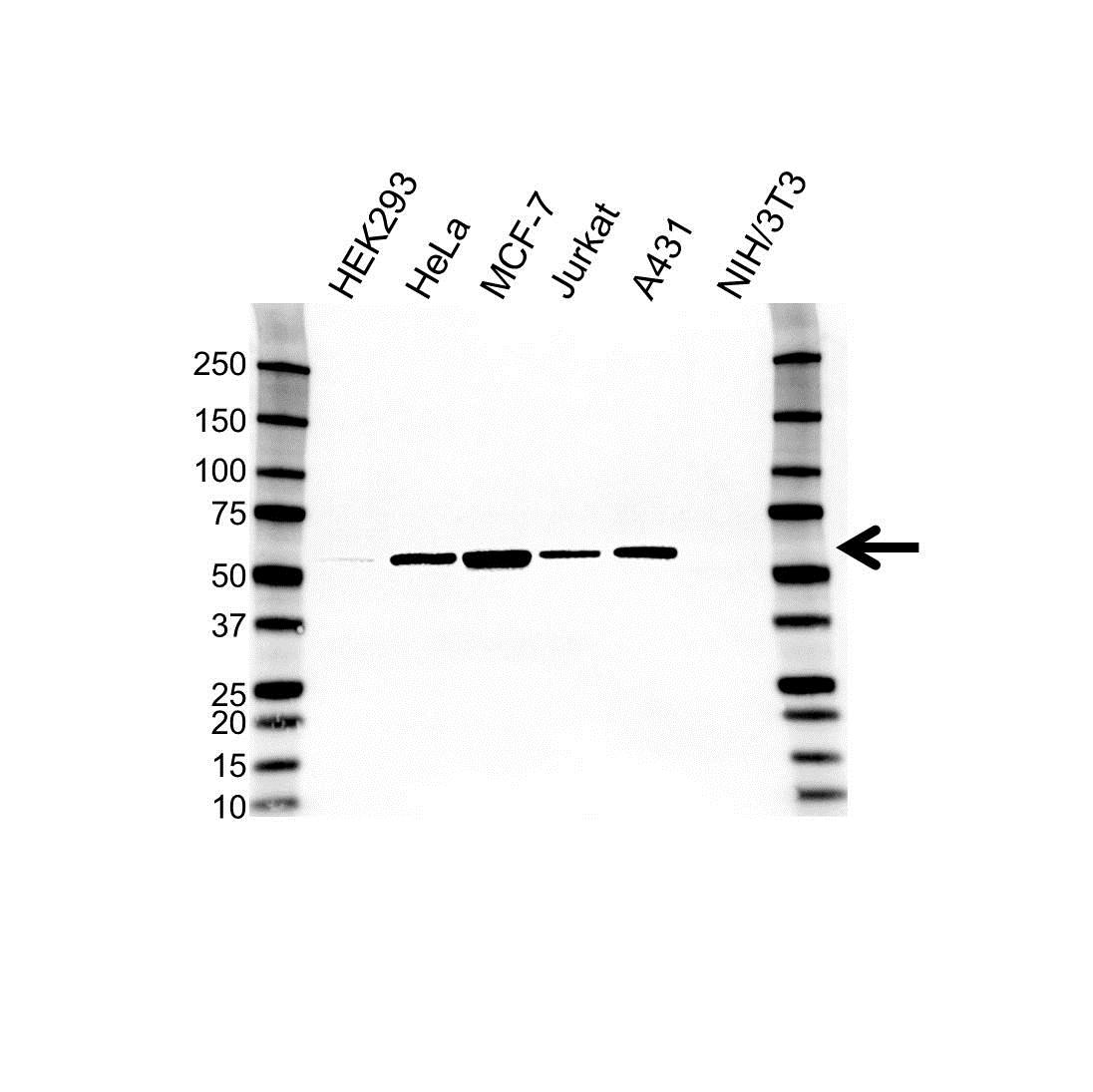 Anti Glucose-6-Phosphate Dehydrogenase Antibody (PrecisionAb Monoclonal Antibody) gallery image 1