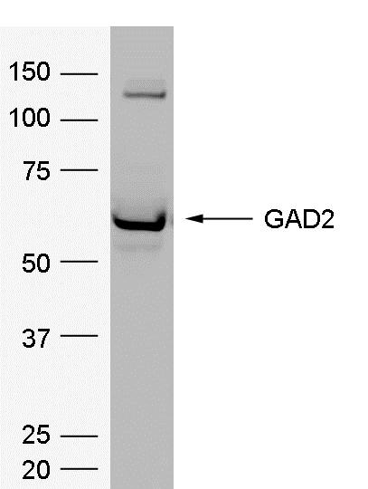 Anti Human Glutamate Decarboxylase 2 Antibody, clone 114.4E8 gallery image 1