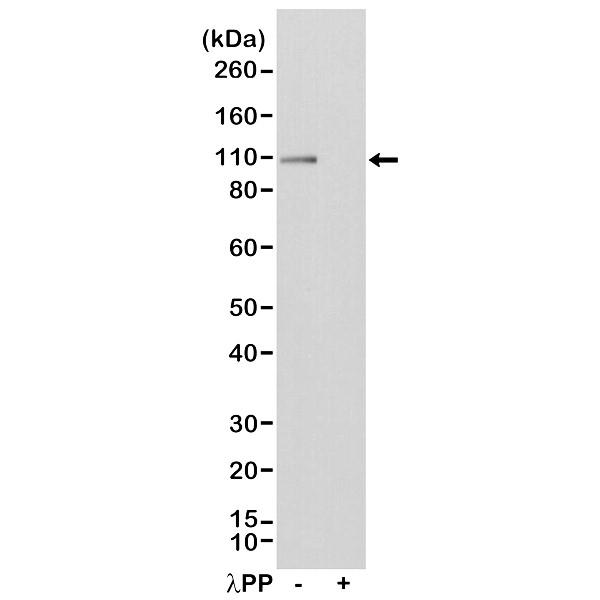 Anti Glutamate Receptor 1 (pSer845) Antibody, clone RM296 thumbnail image 1