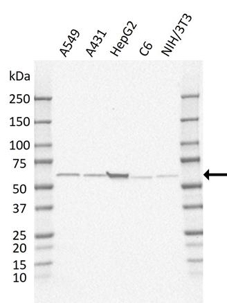 Anti GRB7 Antibody, clone AB03/2E10 gallery image 1