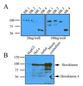 Anti Human Hexokinase 1 Antibody, clone 4D7 thumbnail image 2