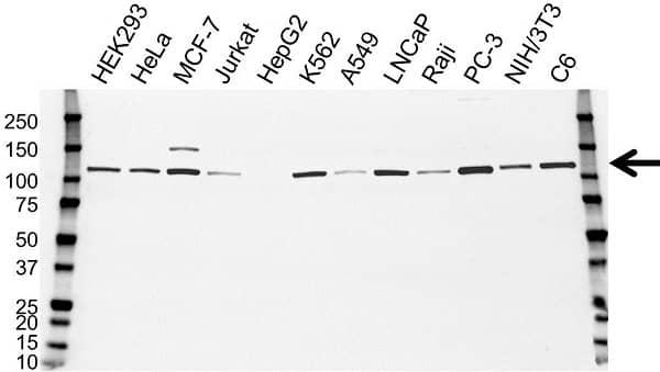 Anti Hexokinase 1 Antibody, clone 7A7 (PrecisionAb Monoclonal Antibody) thumbnail image 1