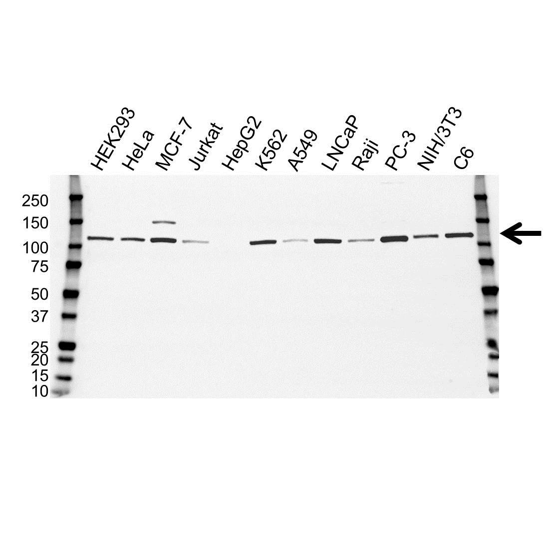 Anti Hexokinase 1 Antibody (PrecisionAb™ Monoclonal Antibody) gallery image 1