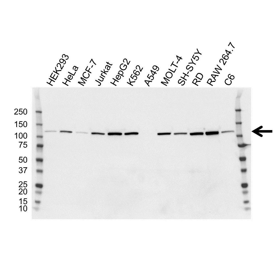 Anti Hexokinase 2 Antibody, clone OTI4C5 (PrecisionAb™ Monoclonal Antibody) gallery image 1