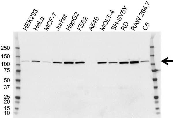 Anti Hexokinase 2 Antibody, clone OTI4C5 (PrecisionAb Monoclonal Antibody) thumbnail image 1