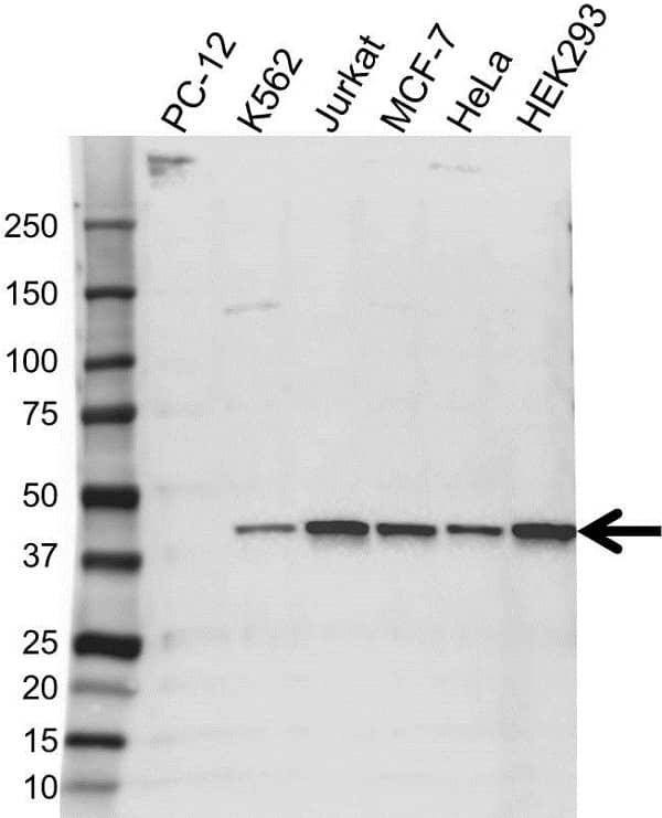 Anti HIF1AN Antibody (PrecisionAb Monoclonal Antibody) gallery image 1
