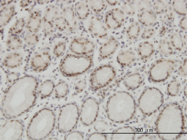 Anti Human High Mobility Group Protein B1 Antibody, clone 1E6-E10 gallery image 1