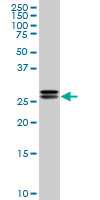 Anti Human High Mobility Group Protein B2 Antibody, clone 3E5 thumbnail image 1