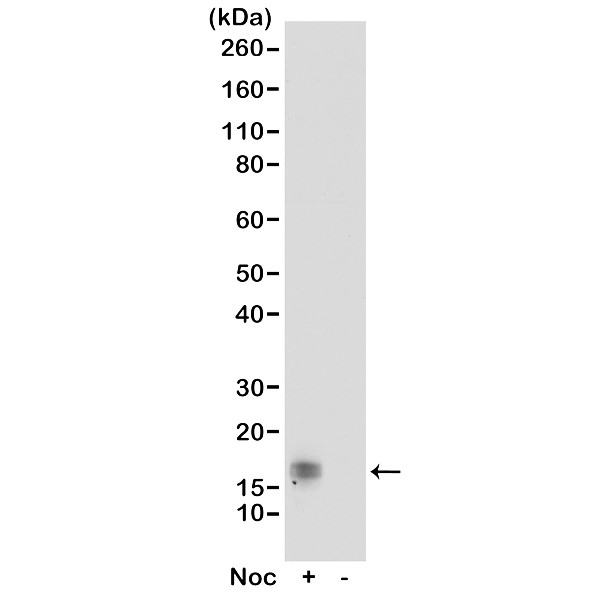 Anti Histone H3F3A (pThr11) Antibody, clone RM164 gallery image 1