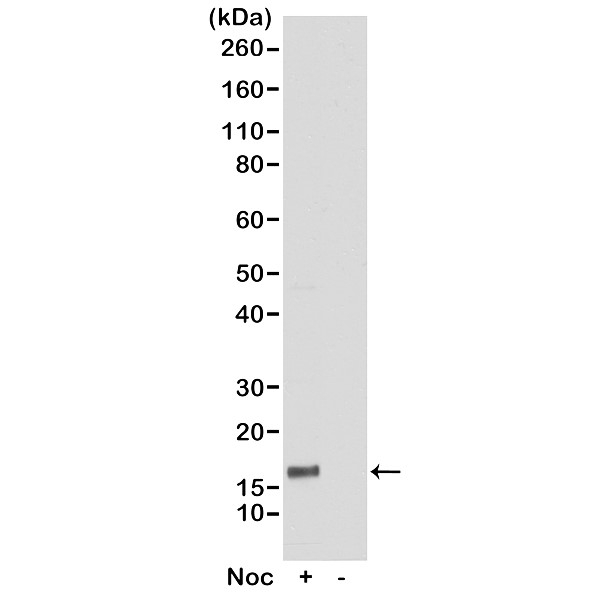 Anti Histone H3F3A (pThr6) Antibody, clone RM160 gallery image 1