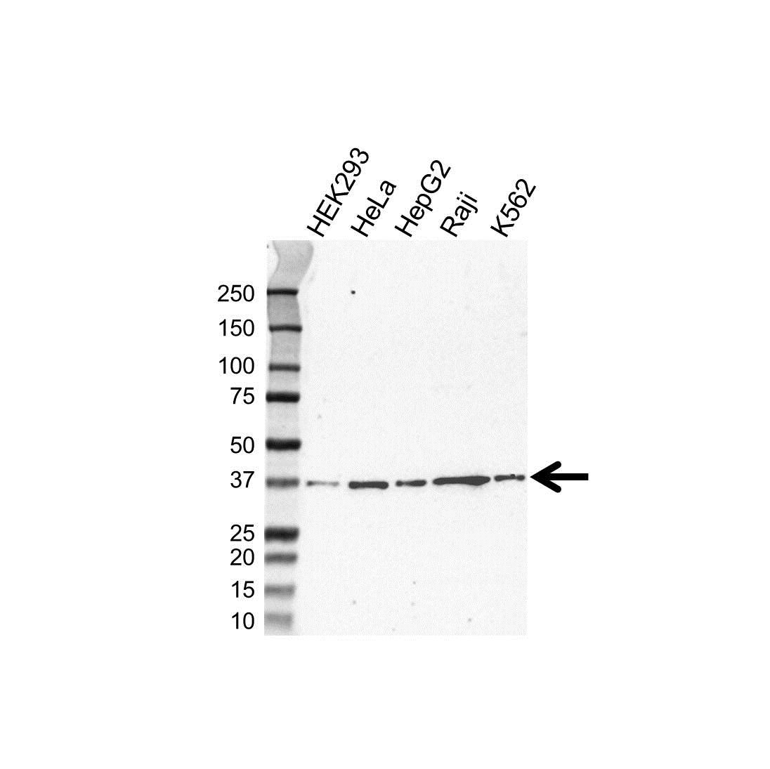 Anti Hmbs Antibody, clone UMAB144 (PrecisionAb Monoclonal Antibody) gallery image 1