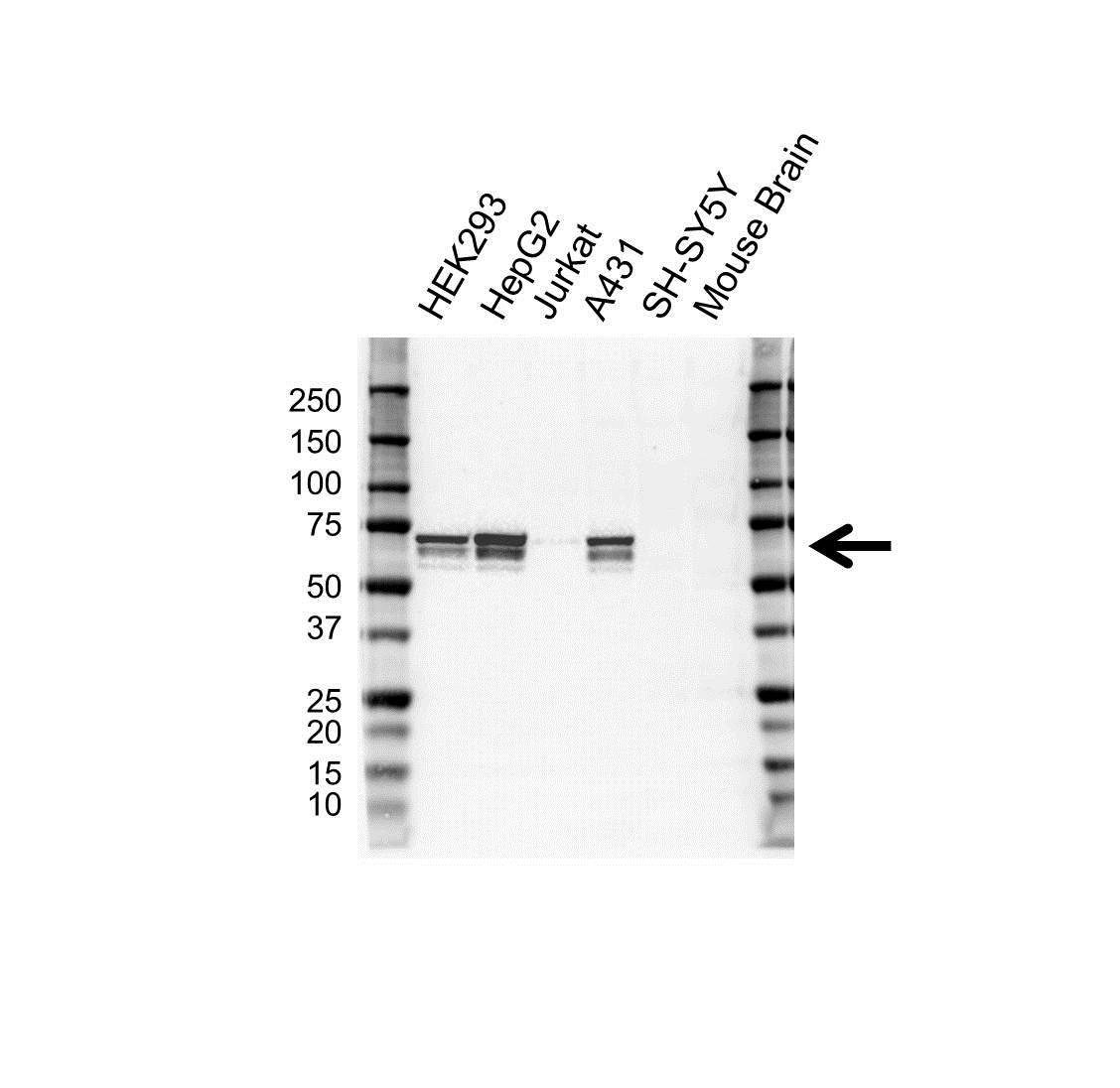 Anti IGF2BP-2 Antibody, clone OTI3C8 (PrecisionAb Monoclonal Antibody) gallery image 1