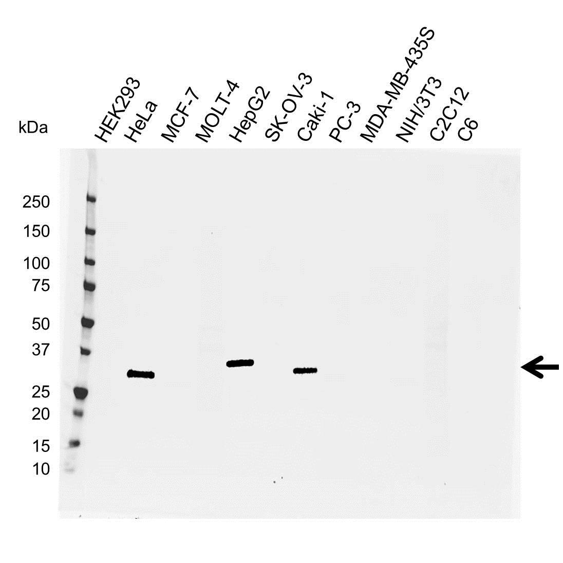 Anti IGFBP-7 Antibody (PrecisionAb Monoclonal Antibody) gallery image 1
