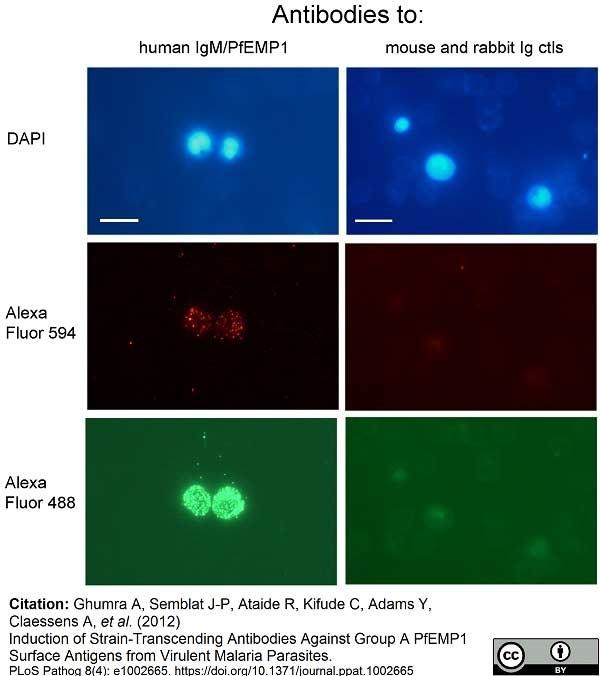 Anti Human IgM Antibody, clone M15/8 thumbnail image 1
