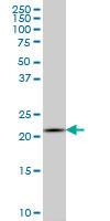 Anti Human Interleukin-20 Antibody, clone 2H8 gallery image 1