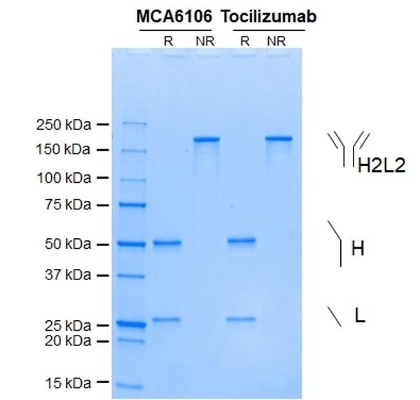 Anti IL6R (Tocilizumab Biosimilar) Antibody, clone rhPM-1 thumbnail image 1