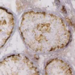 Anti Human Inhibin Alpha Antibody, clone R1 thumbnail image 1