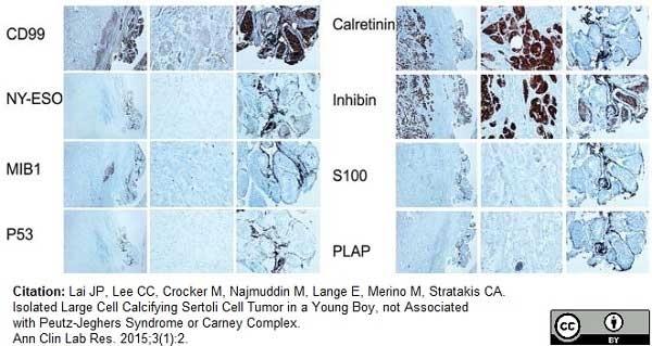 Anti Human Inhibin Alpha Antibody, clone R1 thumbnail image 13