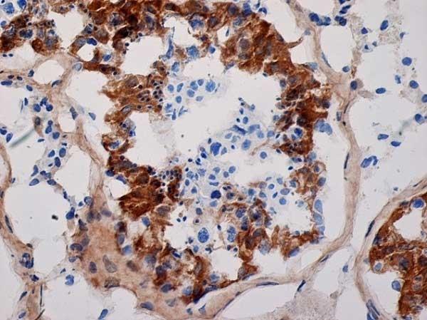 Anti Human Inhibin Alpha Antibody, clone R1 thumbnail image 3