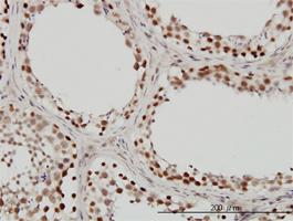 Anti Human INI-1 Antibody, clone 3E10 thumbnail image 2