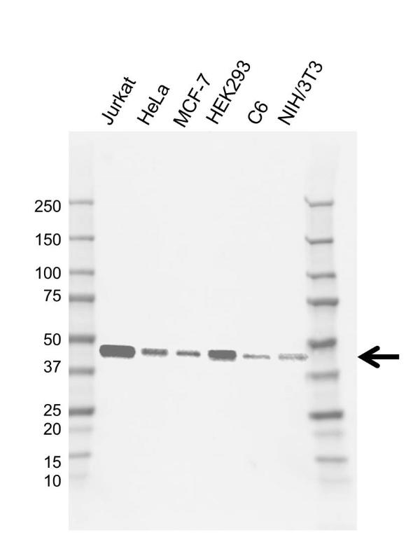 Anti INI-1 Antibody, clone E01/5G8 (PrecisionAb Monoclonal Antibody) gallery image 1