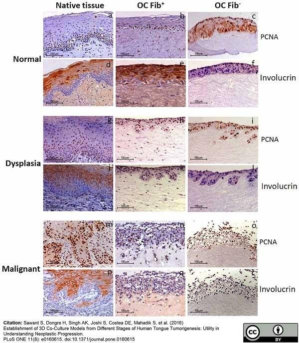 Anti Human Involucrin Antibody, clone SY5 gallery image 1