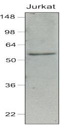 Anti Human IRF7 Antibody, clone 3D9 gallery image 1
