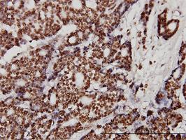 Anti Human Ku70 Antibody, clone 4C2-1A6 thumbnail image 3
