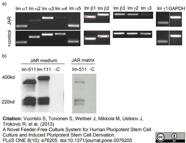 Anti Human Laminin Alpha 5 Antibody, clone 4C7 (2D8/33) thumbnail image 1