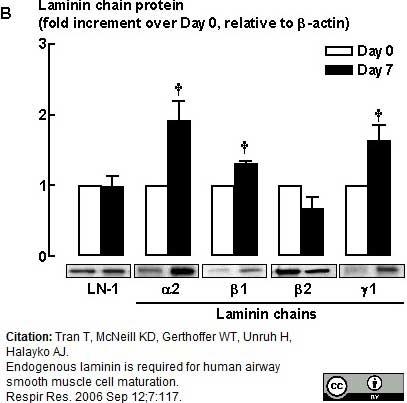 Anti Human Laminin Alpha 2 Antibody, clone 5H2 thumbnail image 2