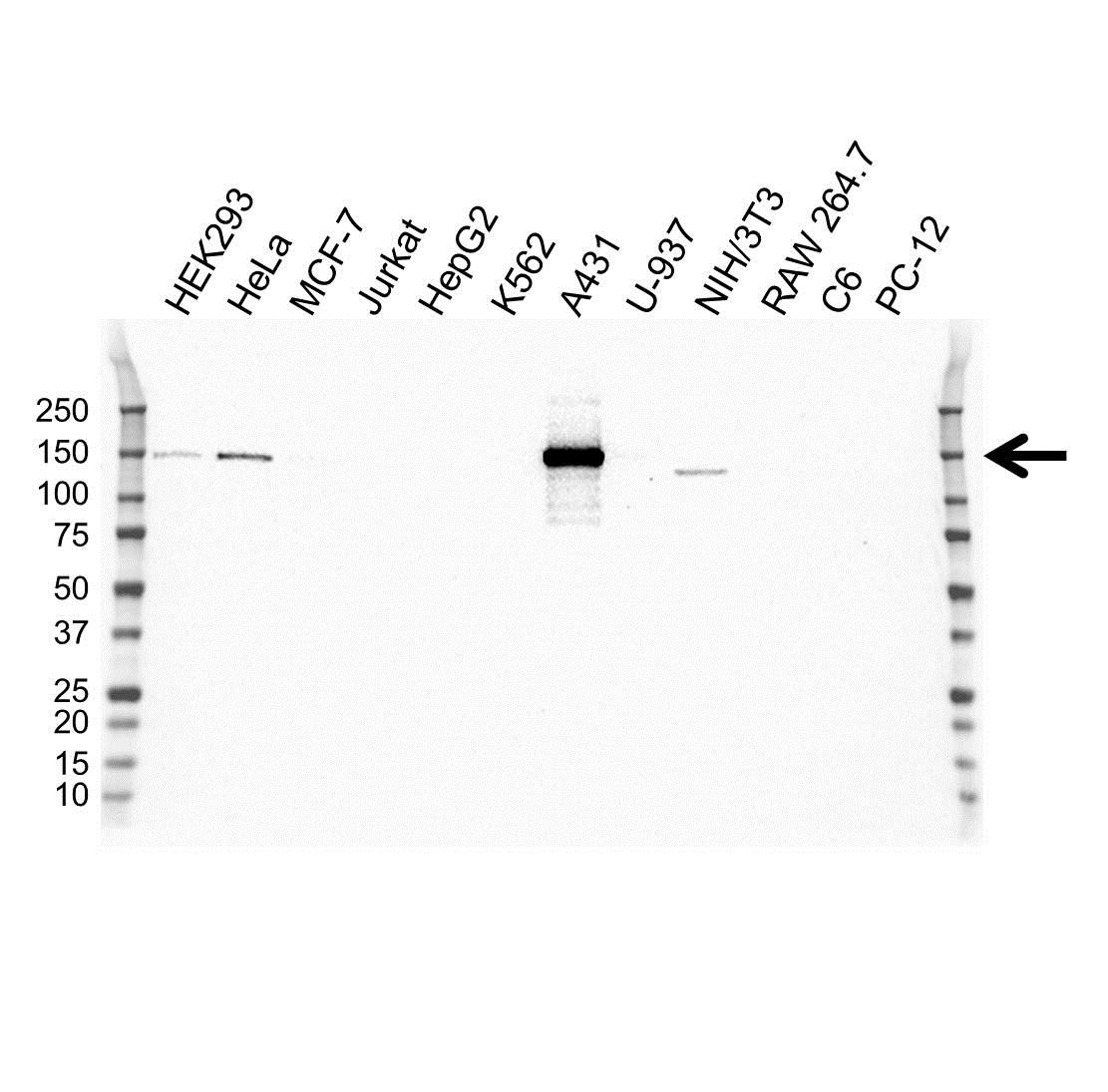 Anti Laminin Beta 3 Antibody, clone OTI3A2 (PrecisionAb™ Monoclonal Antibody) gallery image 1