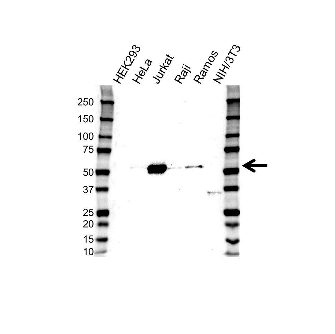 Anti Lck Antibody (PrecisionAb™ Monoclonal Antibody) gallery image 1