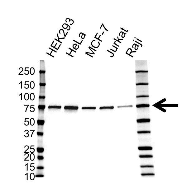 Anti Lipoma-Preferred Partner Antibody (PrecisionAb™ Monoclonal Antibody) thumbnail image 1