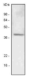 Anti Human LYVE-1 Antibody, clone 4G1 gallery image 1