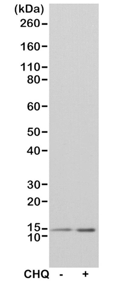 Anti MAP1LC3B Antibody, clone RM293 thumbnail image 1