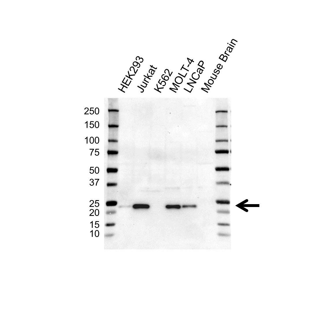 Anti MGMT Antibody, clone UMAB56 (PrecisionAb™ Monoclonal Antibody) gallery image 1