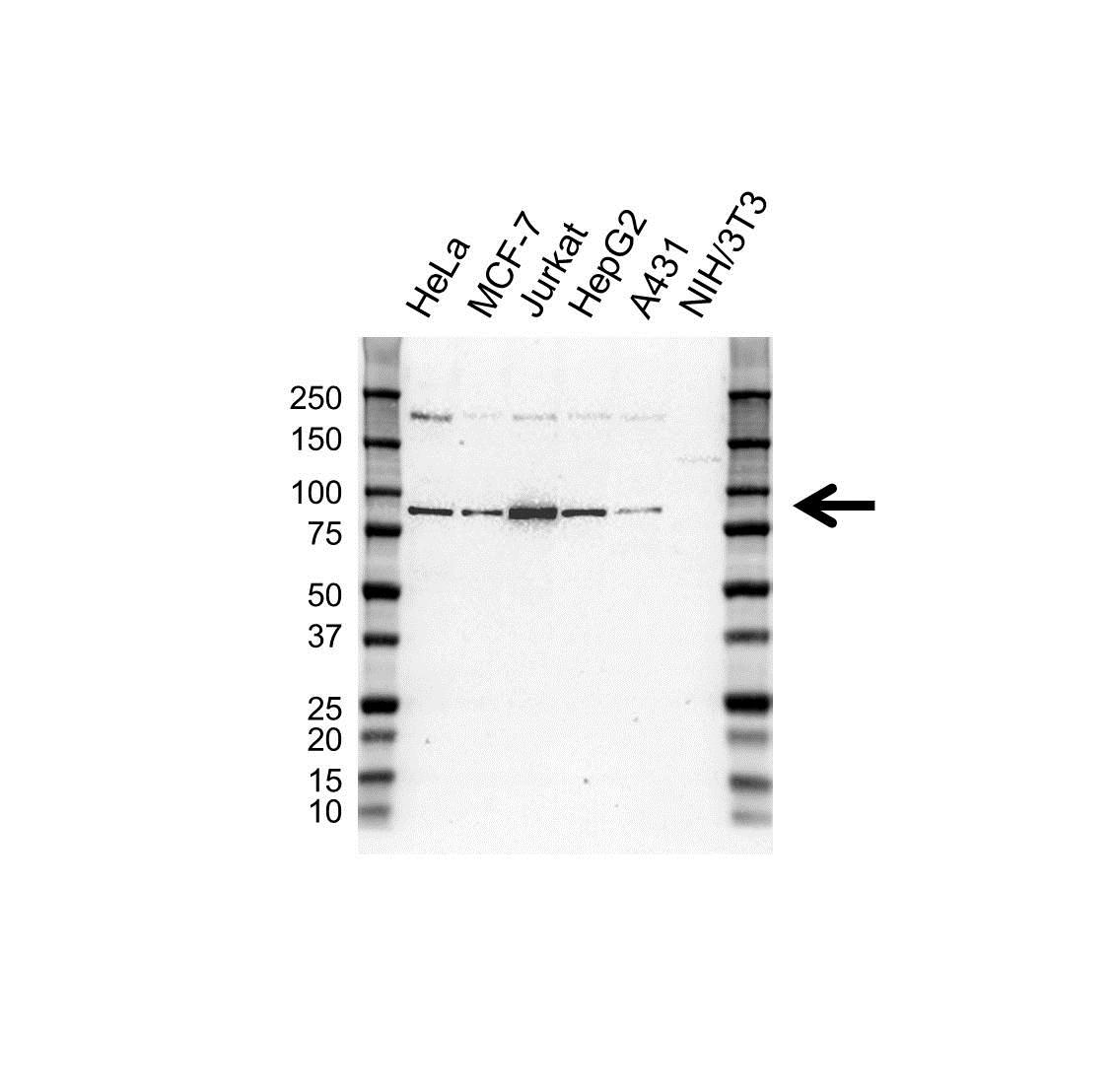Anti MLH1 Antibody, clone UMAB191 (PrecisionAb Monoclonal Antibody) gallery image 1