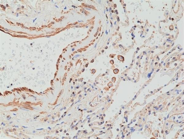 Anti MMP-12 Antibody, clone RM381 thumbnail image 2