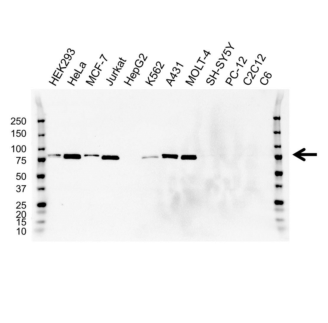 Anti MMP-2 Antibody (PrecisionAb Monoclonal Antibody) gallery image 1