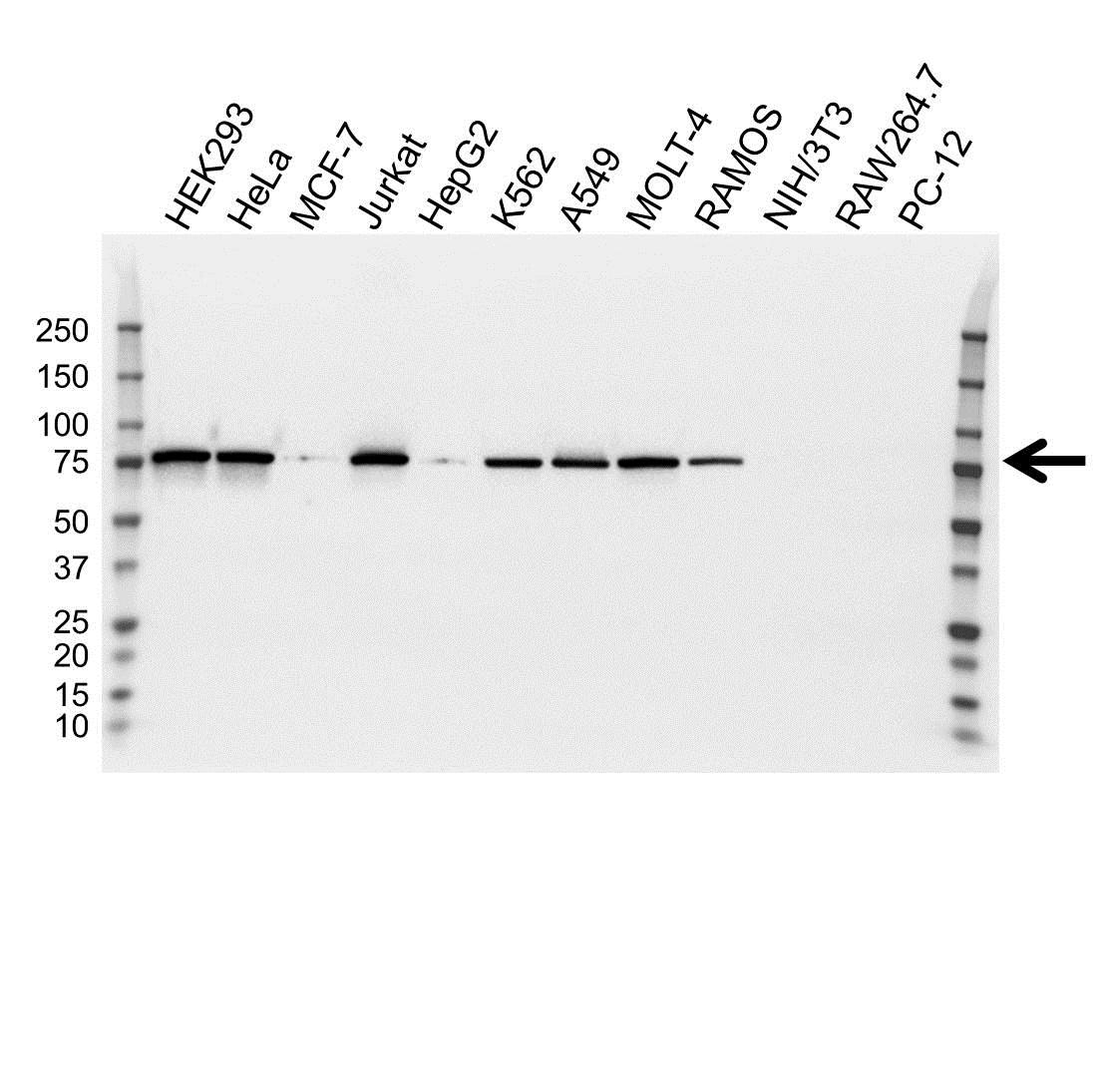 Anti Moesin Antibody (PrecisionAb™ Monoclonal Antibody) gallery image 1